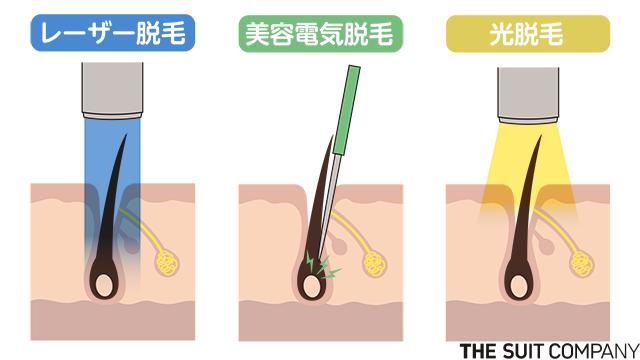 ヒゲ脱毛の効果はいつ出る?ヒゲの減り方&仕上がりイメージを徹底解説 ...